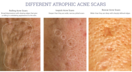 Different atrophic acne scars