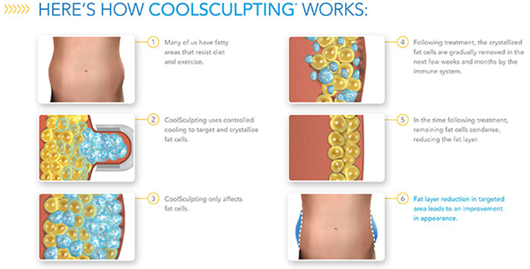 Prive Clinic Singapore How Coolsculpting Work On Fat